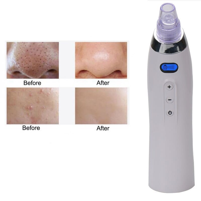 Portable Blackhead Remover Device with Multiple Attachments and LCD Screen